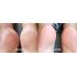 Instant Foot Peeling ESSENTIAL KIT
